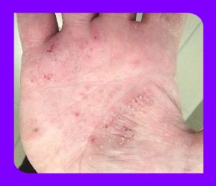 Симптомы псориаза как начинается - первые признаки
