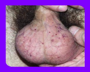 Варикоз половых губ при беременности что делать лечение влагалища