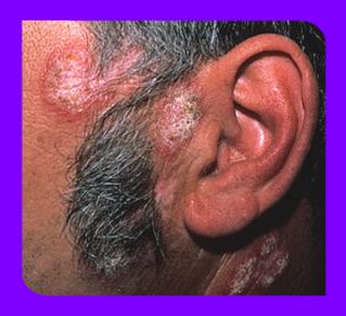 Щитовидная железа узлы лечение народные средства